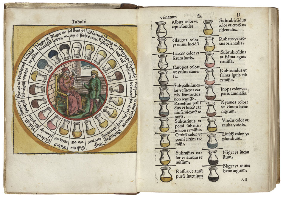 Hand-colored woodcuts matching the colored flasks of urine to specific diseases to aid in diagnosis